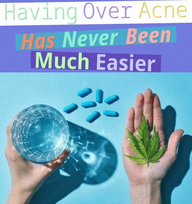 Having Over Acne Has Never Been Much Easier!