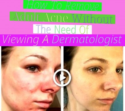 How To Remove Adult Acne Without The Need Of Viewing A Dermatologist?