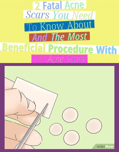 2 Fatal Acne Scars You Need To Know About And The Most Beneficial Procedure With The Acne Scars